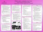 Breast Lesion Localization: Savi Scout by Madison L. Keegan