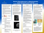 Breast Fibroadenomas
