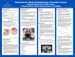 Stereotactic Body Radiotherapy: Prostate Cancer by Monica Mahon