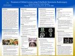 Treatment of Orbital Lesions using CyberKnife Stereotactic Radiosurgery